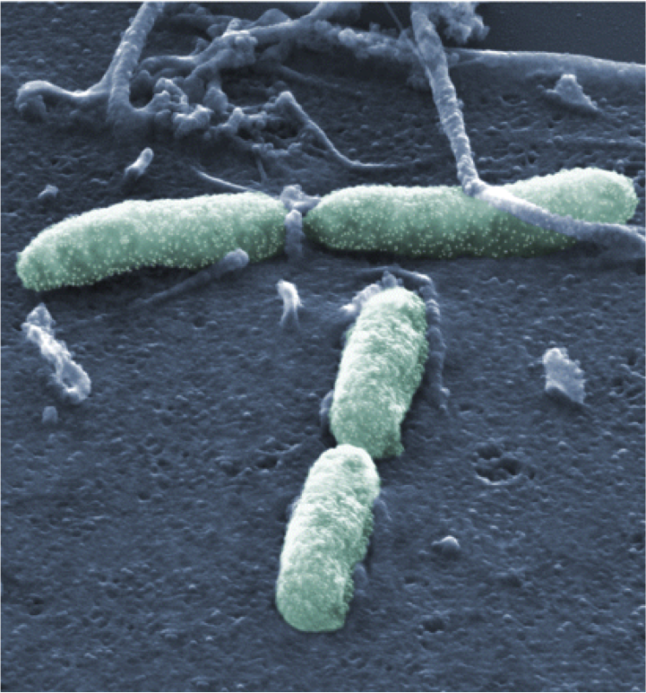 Scanning electron microscopy image of Y. pseudotuberculosis attached to HeLa cell